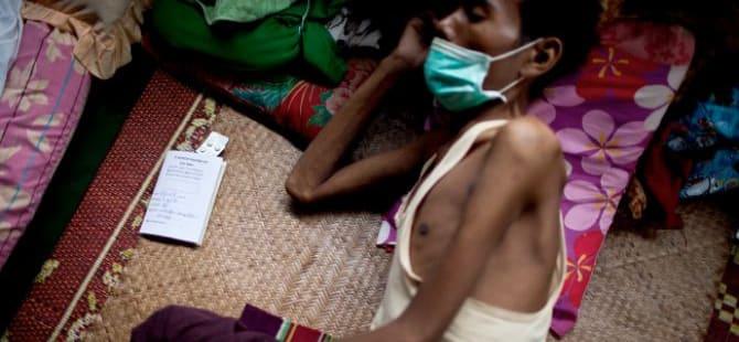 Tips Merawat Pasien HIV di Rumah